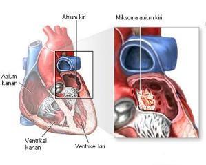 Tumor Jantung